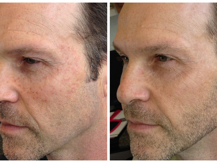 Part One: Injections + Skincare for Men