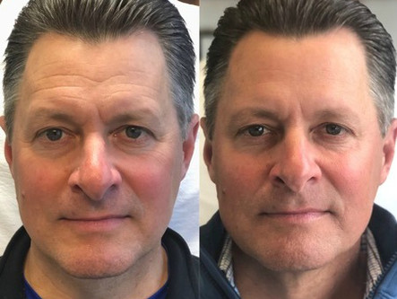 Part Two of Injections + Skincare for Men: Botox
