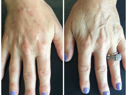 It's Handled! Treatment Options for Hand Beautification