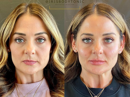 The Most Frequently Asked Questions About Fillers + Botox
