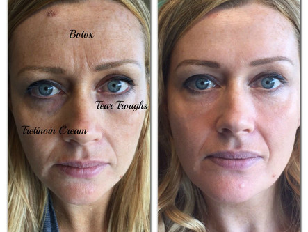 """""""I'm A Before Picture"""": Deconstructing Spectacular Treatment Results"""