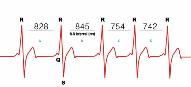 HRV_Intervals, Heart Rate Variability, HRV time gaps, heart beat time gap, time between beats