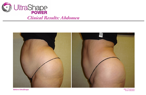 UltraShape Before & After
