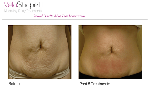VelaShape III Before & After