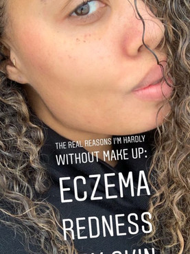 How I Got Rid of My Eczema Naturally