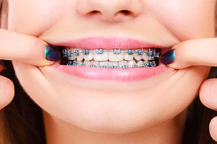 Dentist and orthodontist concept. Woman