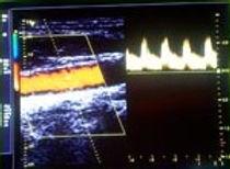 Gefäßuntersuchung Doppler Ultraschall.jpg