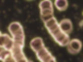 Dunkelfeld-Mikroskopie Darkfield microscopy.jpg