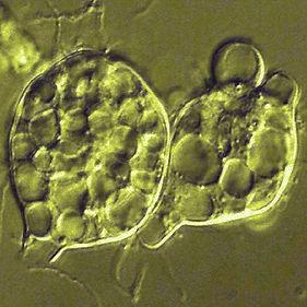 Chytrid Fungus (Batrachochytrium dendrobatidis)