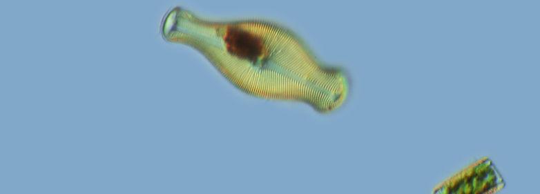 Golden Alga (Prymnesium parvum)