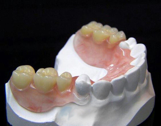 Flexible partials, replace missing teeth