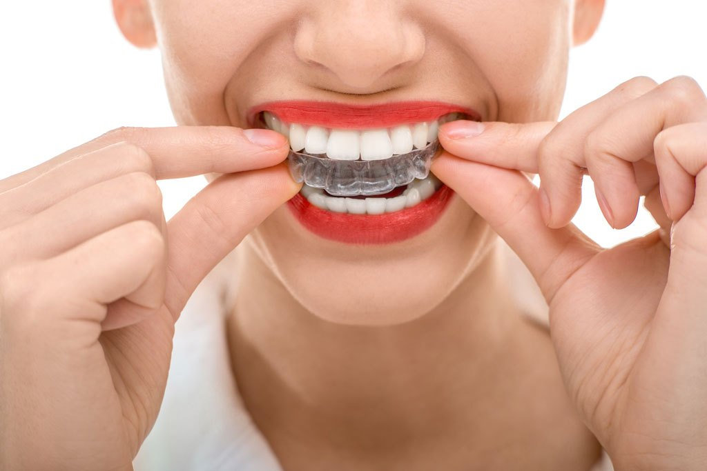 Orthodontic Clear aligner pre exam