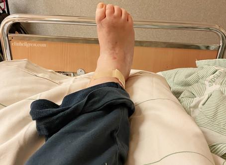 Nervblockad i foten