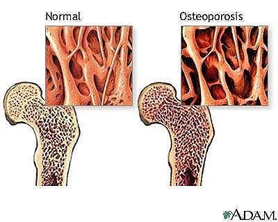 Osteoporos (benskörhet)