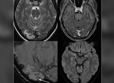 A woman in Australia discovered her headaches were caused by tapeworm larvae in her brain BCI CANADA