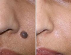 Lunares, dermatologia y medicina estetica. Acne faciales.