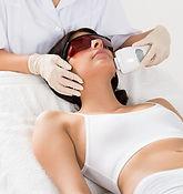Luz pulsada, dermatologia y medicina estetica. Acne faciales.