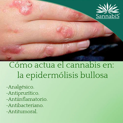 cannabis y epidermolis bullosa.jpg