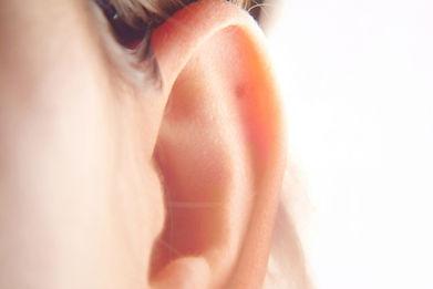 отопластика,отопластика тюмень,операция на уши,торчат уши,лопоухость,операция на уши тюмень,пластика ушей,отопластика ушей,отопластика цена,пластическая операция на уши,коррекция ушей,торчат уши тюмень,лопоухие уши,лопоухость операция,отопластика фото