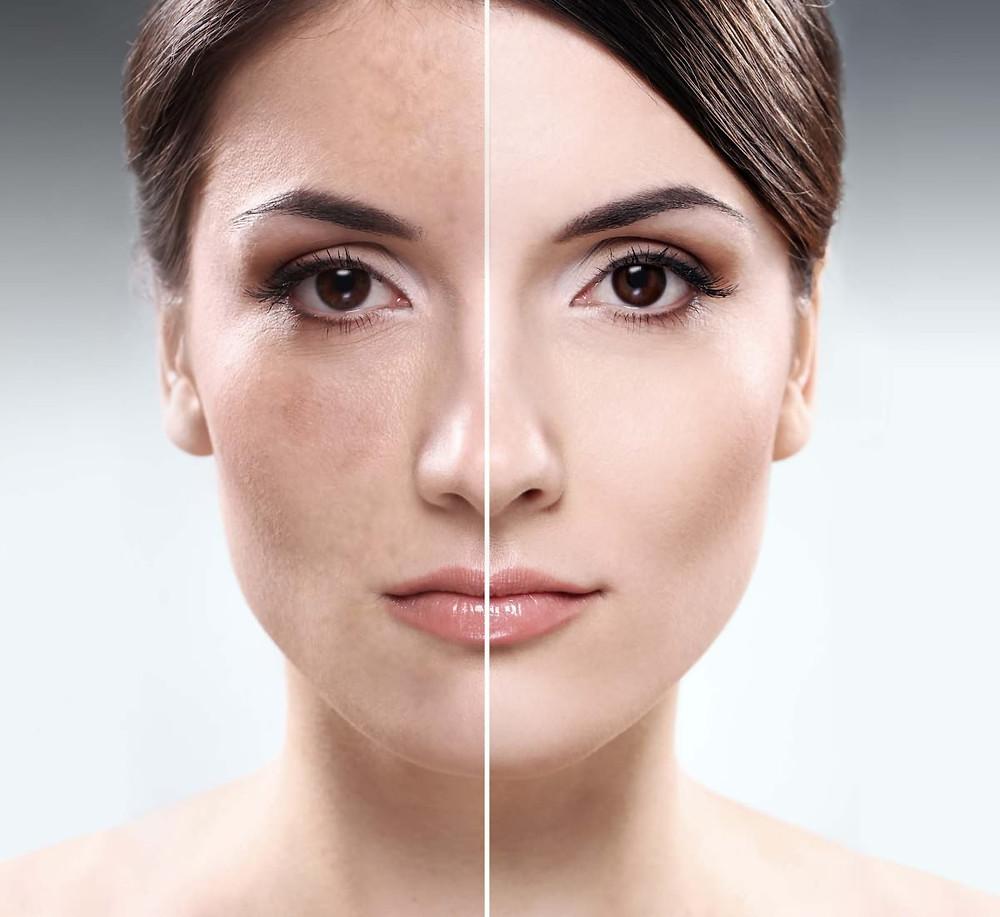 Липофилинг лица в Тюмени – омоложение с минимальными затратами. Эффективный способ убрать круги (синяки) под глазами. Контурная пластика лица. Увеличение губ.