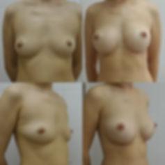 увеличение груди,увеличить грудь,силиконовая грудь,увеличение груди тюмень,увеличение бюста,операция по увеличению груди,увеличение грудных желез,увеличение грудных желез тюмень,увеличение молочных желез,сделать большую грудь