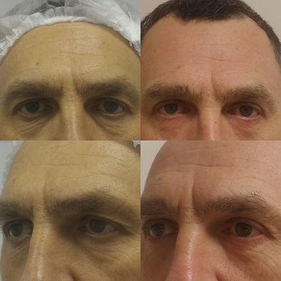 Нависшее веки, усталый взгляд, морщины, мешки и круги под глазами? Современная расширенная блефаропластика даст лучший и долгий результат! блефаропластика,нависшее веко,убрать мешки под глазами,операция на веки,убрать синяки под глазами,убрать круги под глазами,блефаропластика век, нависающее верхнее веко,убрать нависшие веки,пластика век,подтяжка век,обвисшие веки,убрать морщины глаз