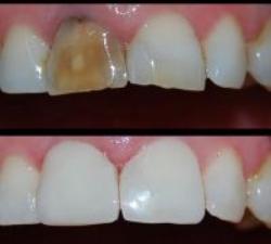 Τι είναι το bonding δοντιών και πότε προτείνεται;
