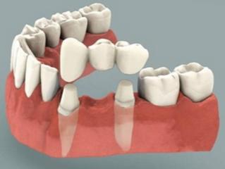 Στεφάνες δοντιών