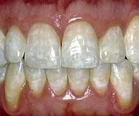 Διάβρωση της αδαμαντίνης (σμάλτου) των δοντιών σας: τι είναι και πώς θα την προλάβετε.