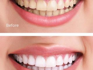 Λεύκανση: Η ιδανική λύση για πιο λαμπερό χαμόγελο
