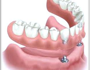 Τεχνητή Οδοντοστοιχία