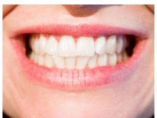 Τρίξιμο δοντιών: Αιτίες - Συμπτώματα - Αντιμετώπιση