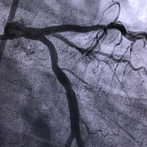 LAd Proximal Darlık İlaçlı Stent sonrası görüntüsü