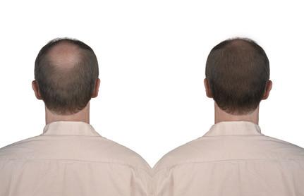 Glatzenbehandlung mit Permanent Make Up, Verdichtung