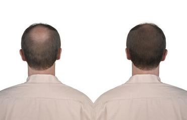 Behandlung einer lokalen Haarlosigkeit bei vorhandenen Kopfhaaren