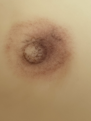 Areola-Rekonstruktion nach Mastektomie (Brustdrüsenentfernung) Brustaufbau , Brustpigmenti