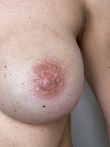 Areola-Rekonstruktion nach Mastektomie (Brustdrüsenentfernung) Brustaufbau , Brustpigmenta