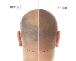 Haarverdichtung mit Permanent Make Up