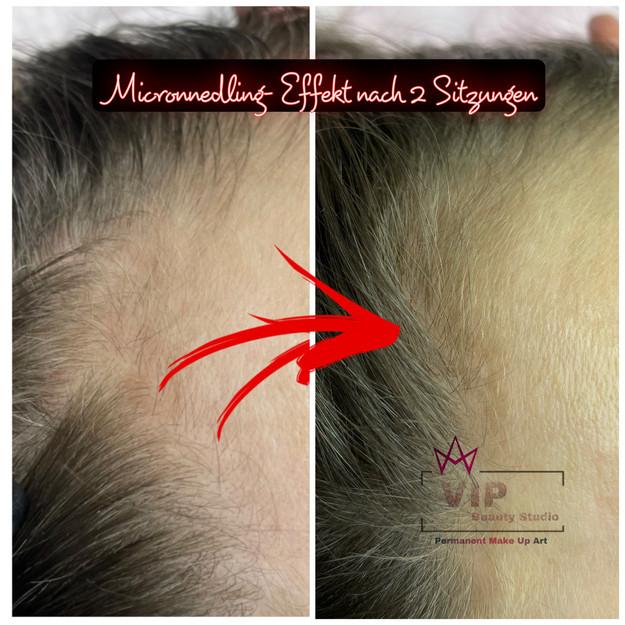 Microneedling gegen Haarausfall HILFT BEI MÄNNERN UND FRAUEN .jpeg