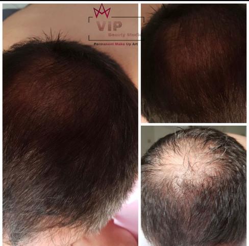 Kopfhautpigmentierung, Kopfhauttätowierung, .JPEG