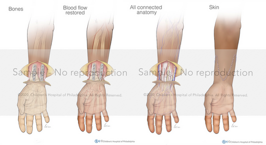 Bilateral Hand Transplant