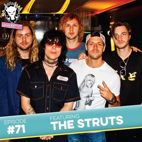 E071 The Struts