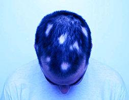 man-with-alopecia.jpg