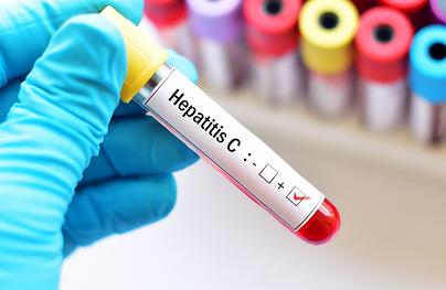 hepatitis-C.png