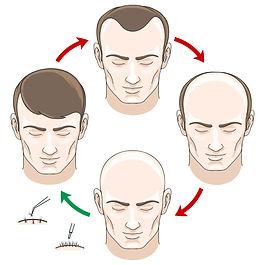 hair-transplant-turkey.jpg