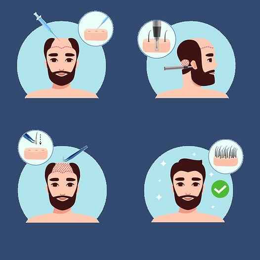 fue-hair-transplant-istanbul.jpg