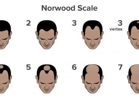 Norwood Scale