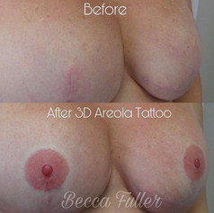 3D Areola Tattooing on flat skin