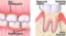 periodontal_disease_05(2).jpg