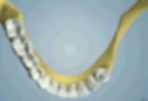 oral_surgery-ridge_augmentation_05(1).jp